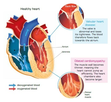 Schematic of the heart - valvular heart disease - dilated cardiomyopathy